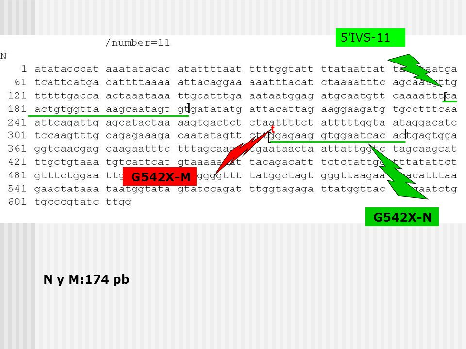 5'IVS-11   t   G542X-M G542X-N N y M:174 pb