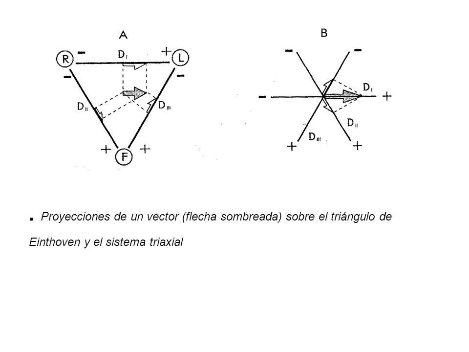 . Proyecciones de un vector (flecha sombreada) sobre el triángulo de Einthoven y el sistema triaxial