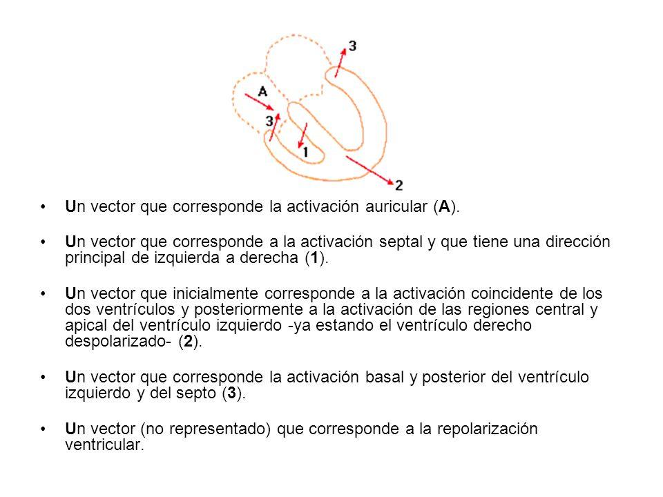 Un vector que corresponde la activación auricular (A).