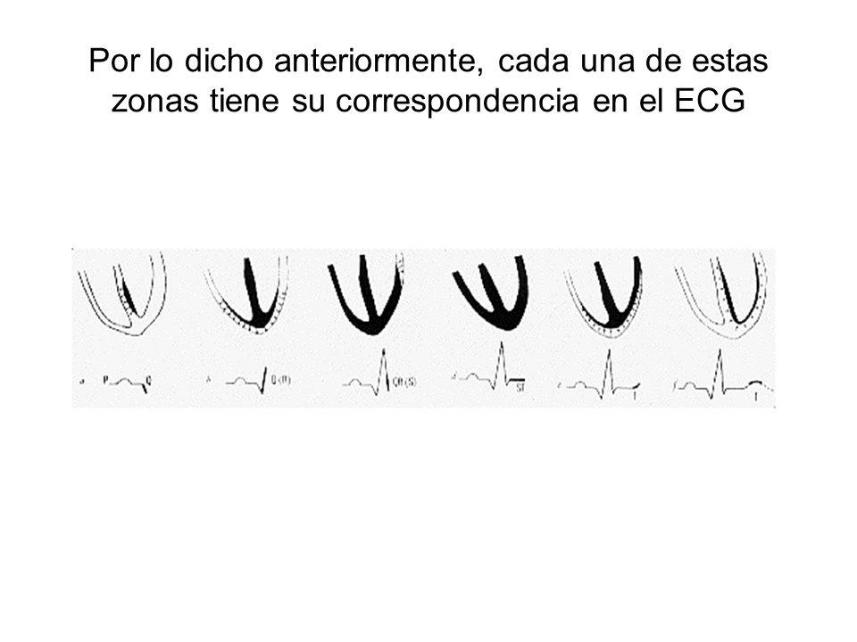 Por lo dicho anteriormente, cada una de estas zonas tiene su correspondencia en el ECG