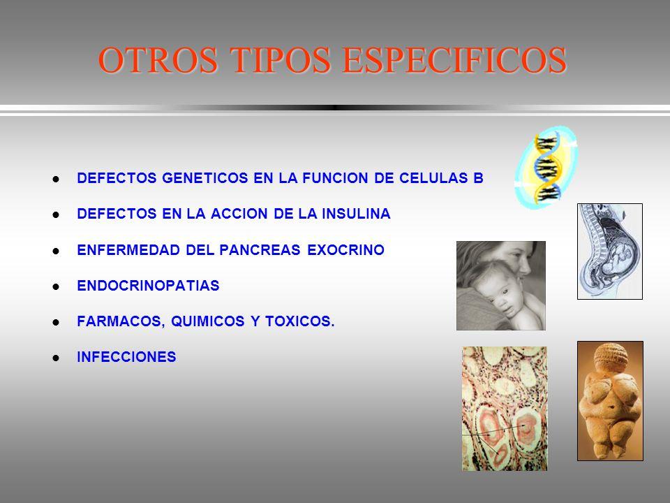 OTROS TIPOS ESPECIFICOS