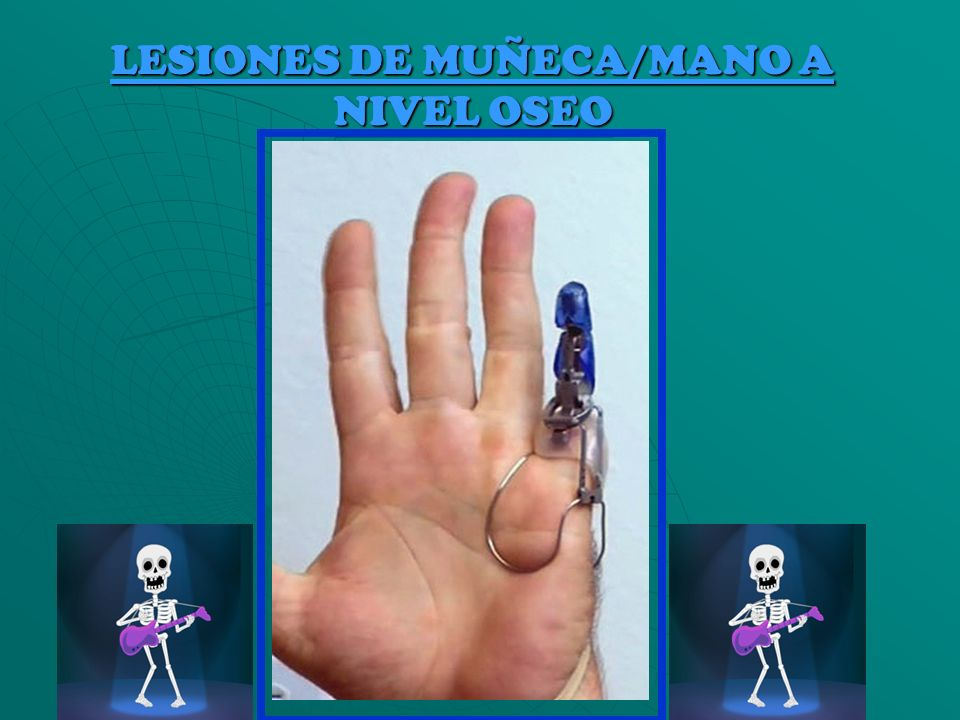 LESIONES DE MUÑECA/MANO A NIVEL OSEO