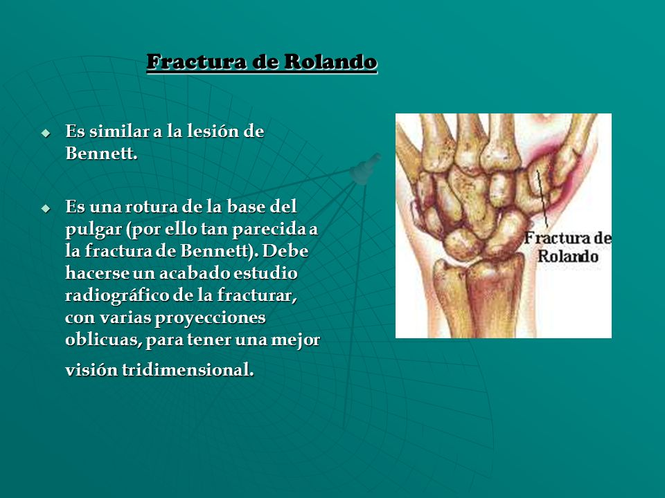Fractura de Rolando Es similar a la lesión de Bennett.