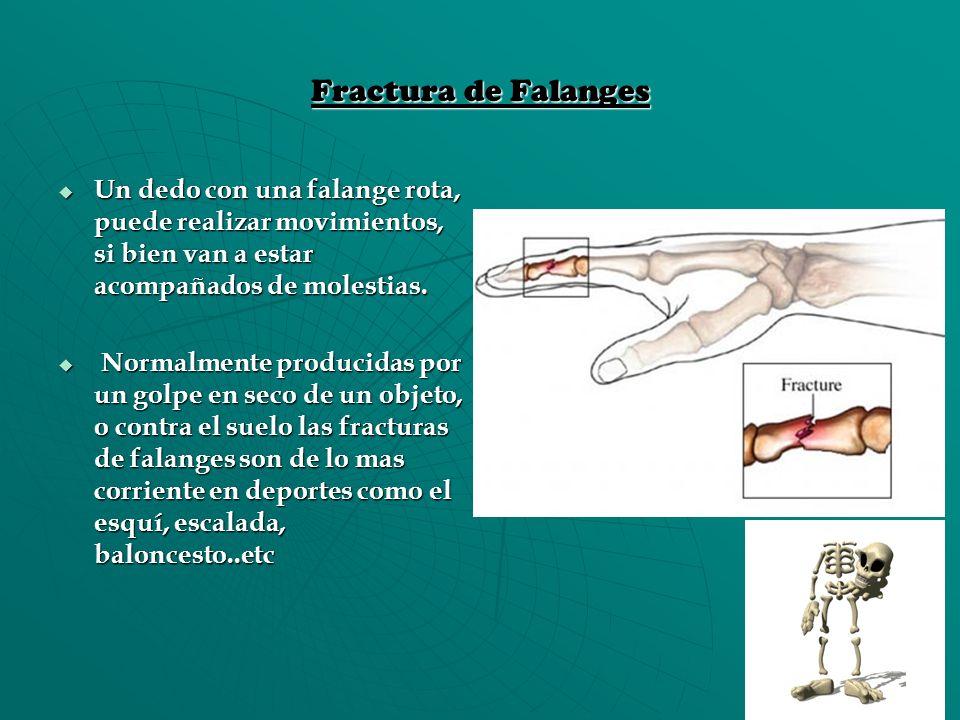 Fractura de Falanges Un dedo con una falange rota, puede realizar movimientos, si bien van a estar acompañados de molestias.