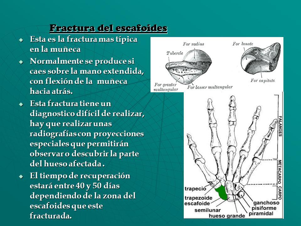 Fractura del escafoides