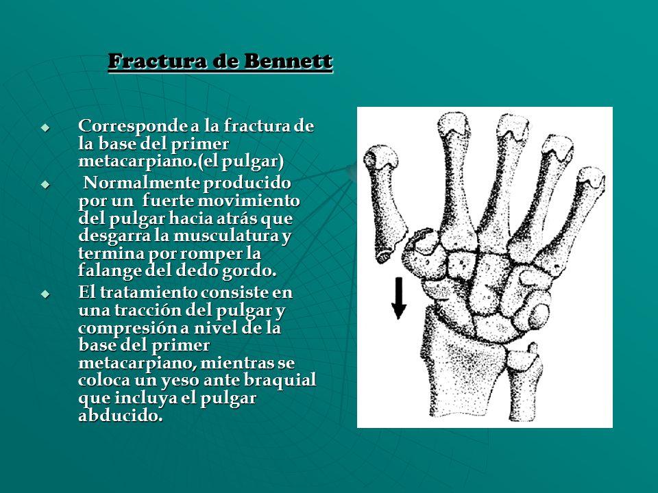 Fractura de Bennett Corresponde a la fractura de la base del primer metacarpiano.(el pulgar)