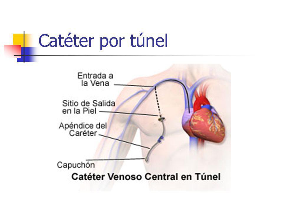Catéter por túnel