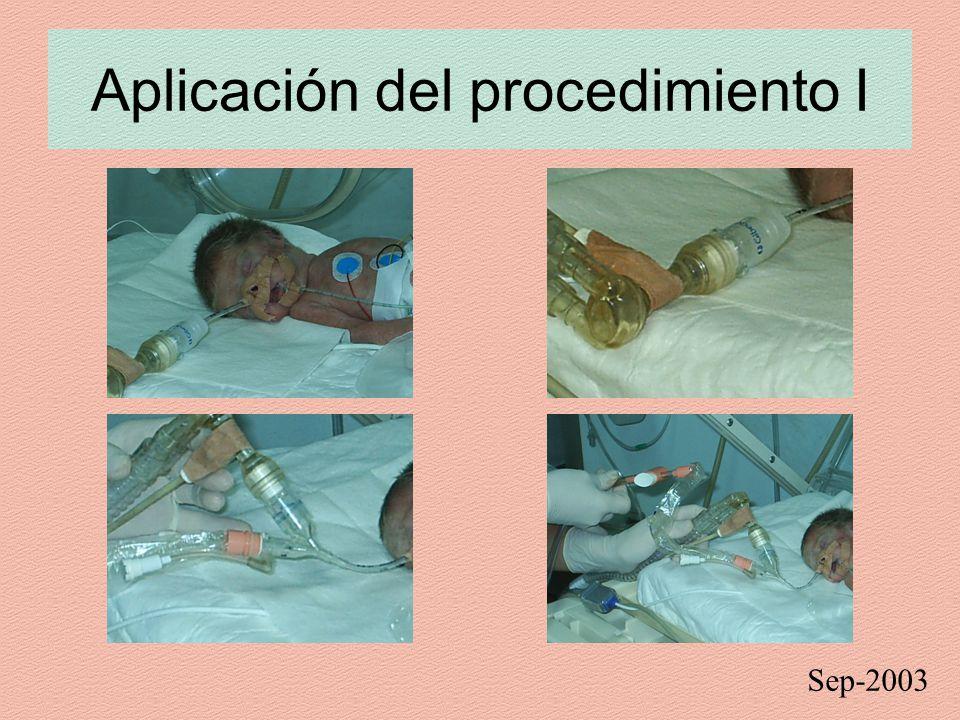 Aplicación del procedimiento I