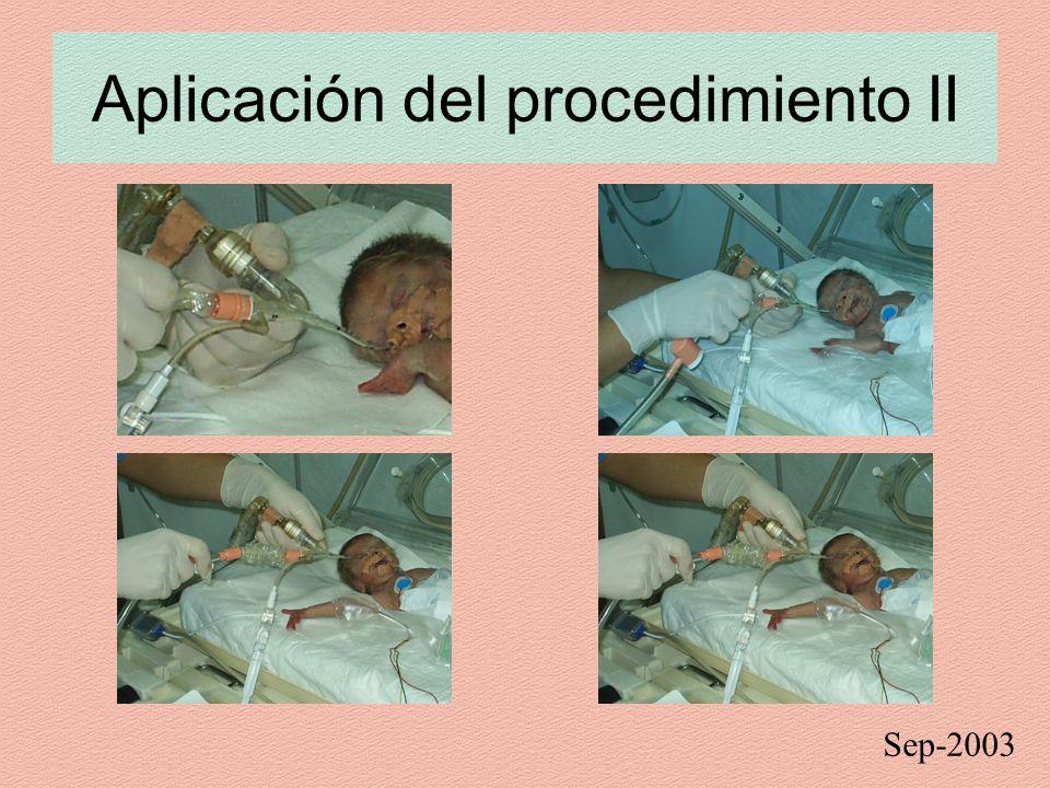 Aplicación del procedimiento II