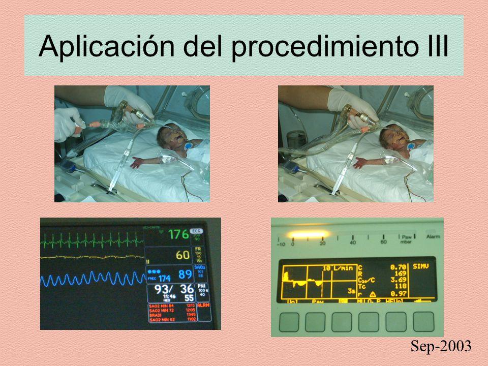 Aplicación del procedimiento III