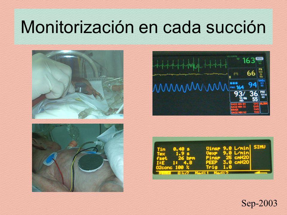 Monitorización en cada succión