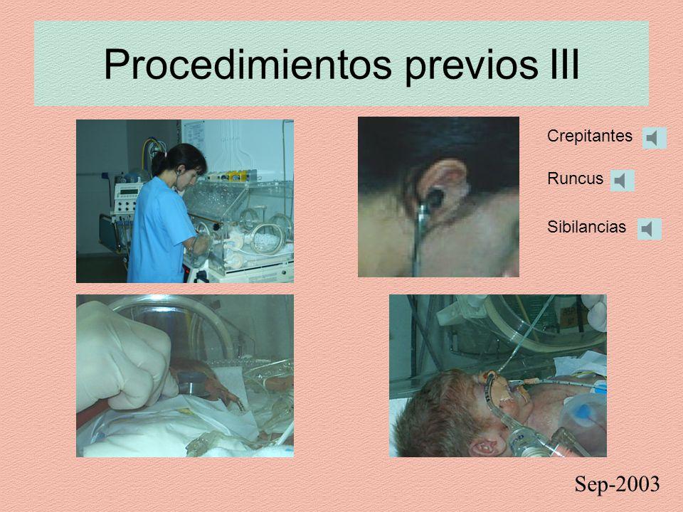 Procedimientos previos III