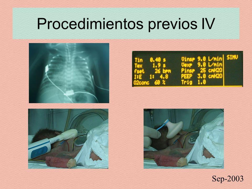 Procedimientos previos IV