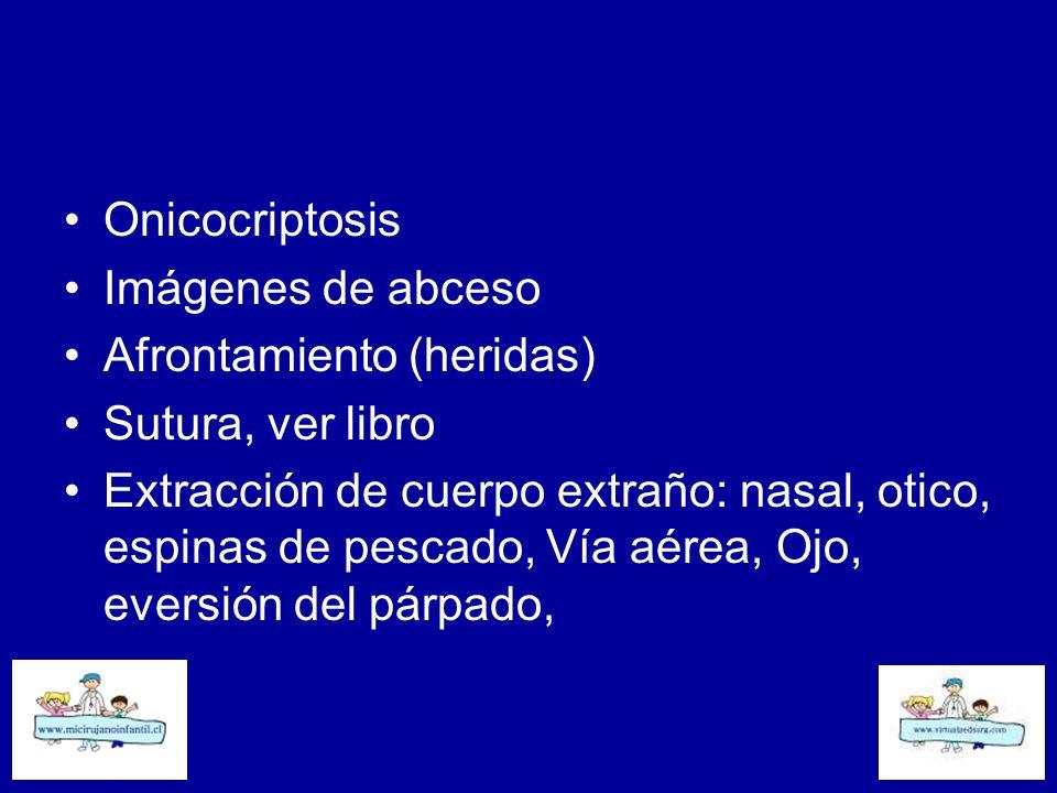 Onicocriptosis Imágenes de abceso. Afrontamiento (heridas) Sutura, ver libro.