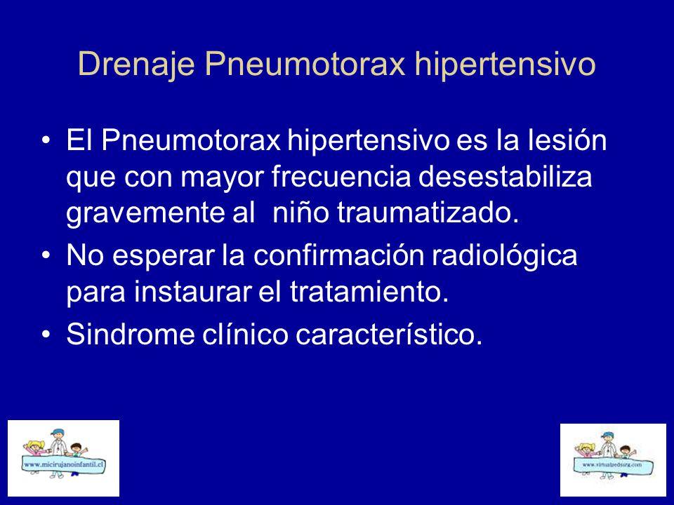 Drenaje Pneumotorax hipertensivo