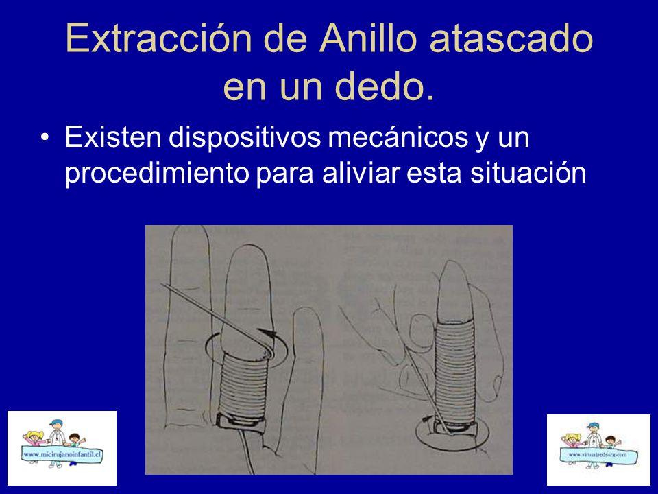 Extracción de Anillo atascado en un dedo.