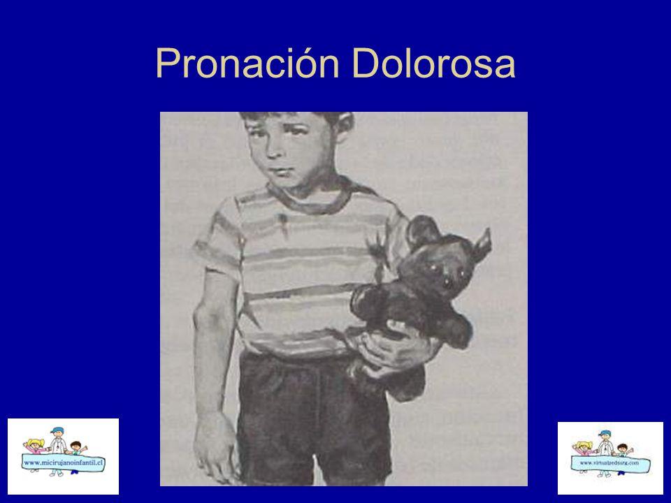 Pronación Dolorosa
