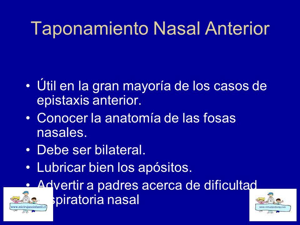 Taponamiento Nasal Anterior
