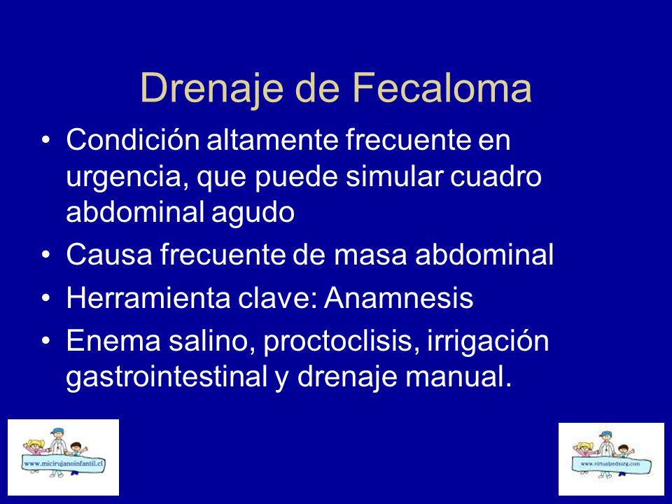 Drenaje de Fecaloma Condición altamente frecuente en urgencia, que puede simular cuadro abdominal agudo.