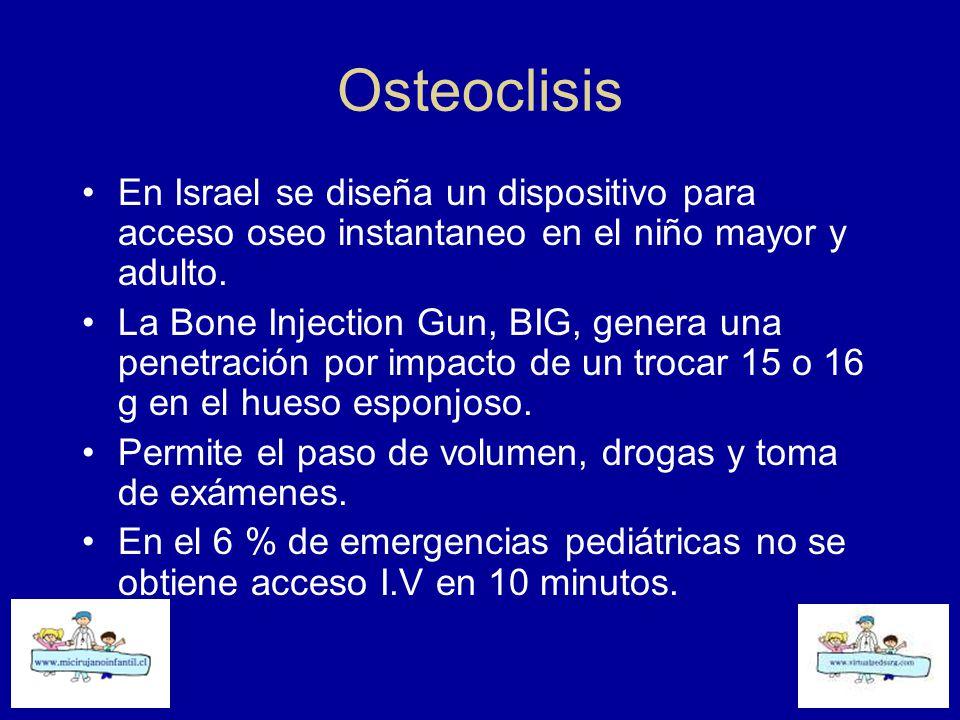 Osteoclisis En Israel se diseña un dispositivo para acceso oseo instantaneo en el niño mayor y adulto.