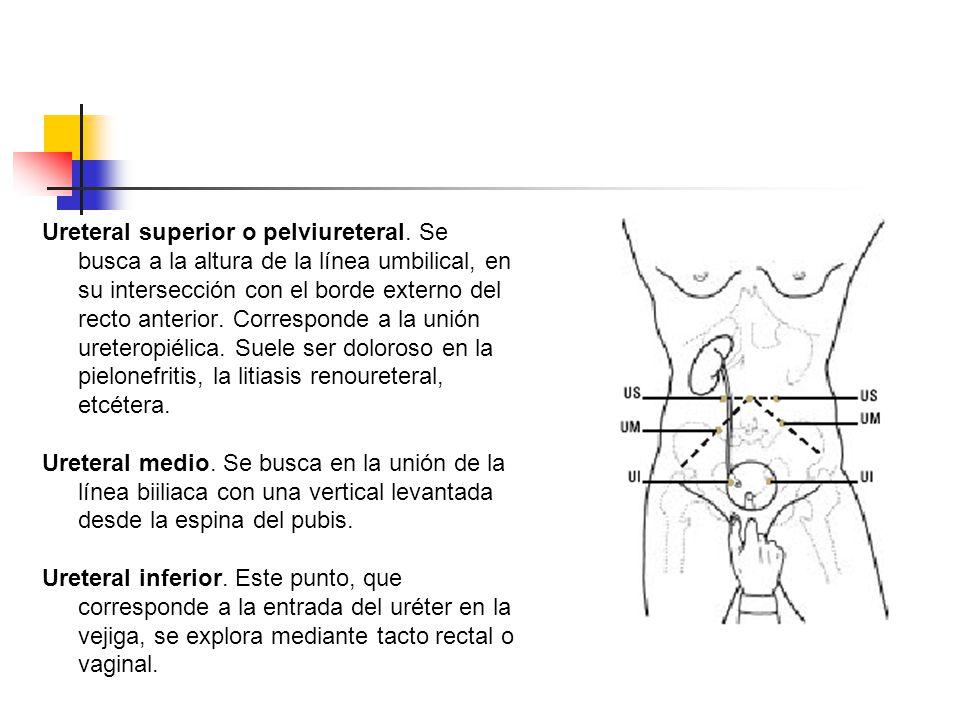 Ureteral superior o pelviureteral