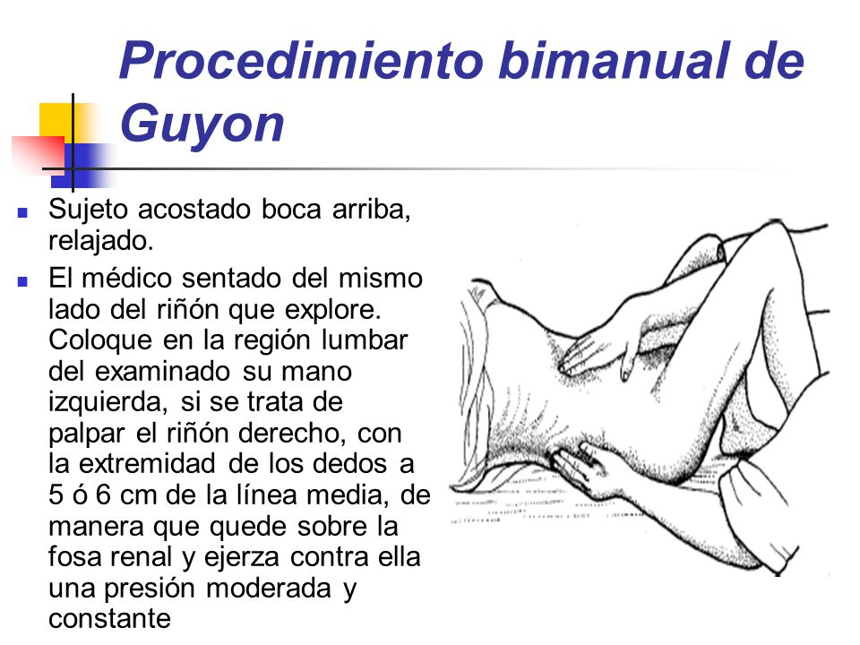 Procedimiento bimanual de Guyon