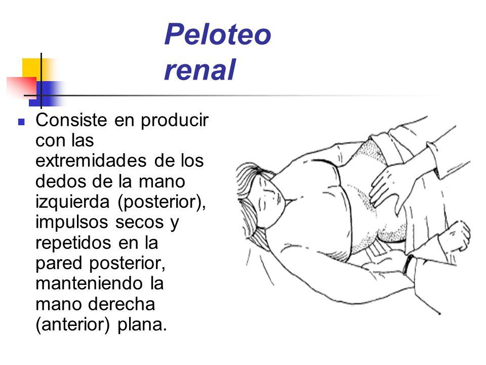 Peloteo renal