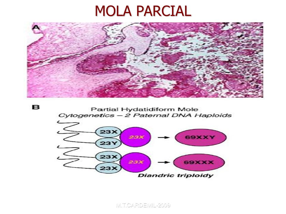 MOLA PARCIAL Choriocarcinoma and Gestacional Trophoblastic Disease. Obstet Gynecol Clin N Am 32(2005)661-684.