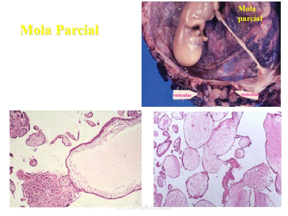 Mola Parcial M.T.CARDEMIL-2009