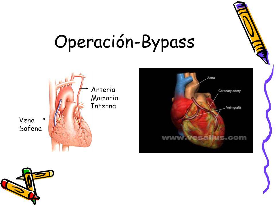 Operación-Bypass Arteria Mamaria Interna Vena Safena Vena Safena