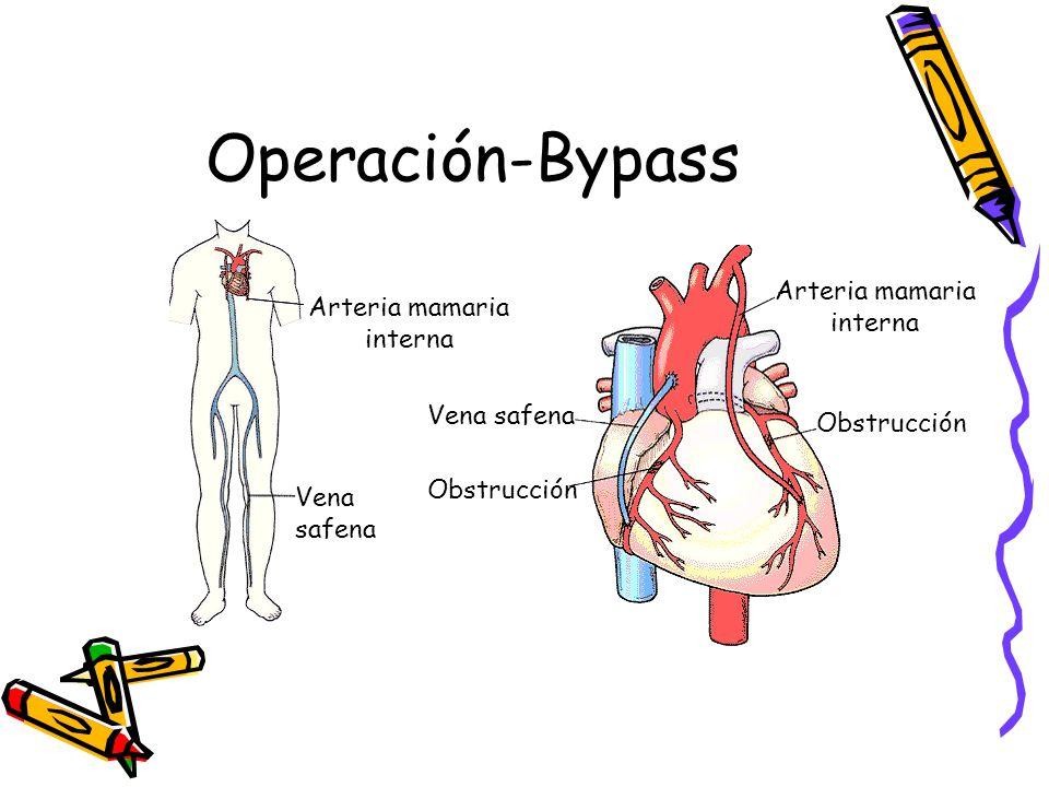 Operación-Bypass Arteria mamaria interna Arteria mamaria interna