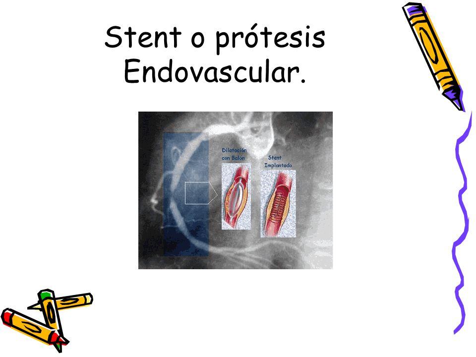 Stent o prótesis Endovascular.