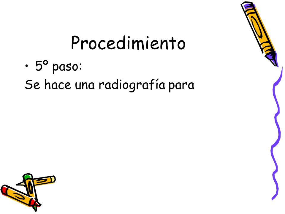Procedimiento 5º paso: Se hace una radiografía para