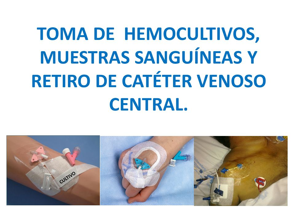 TOMA DE HEMOCULTIVOS, MUESTRAS SANGUÍNEAS Y RETIRO DE CATÉTER VENOSO CENTRAL.
