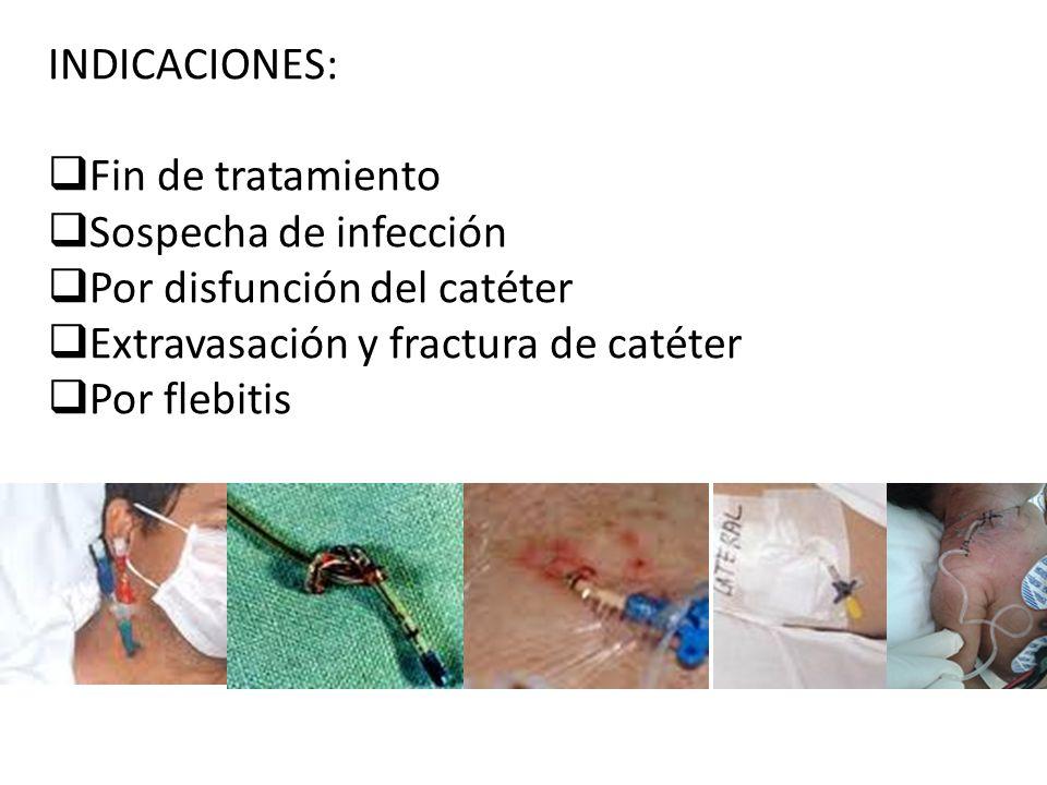 INDICACIONES: Fin de tratamiento. Sospecha de infección. Por disfunción del catéter. Extravasación y fractura de catéter.