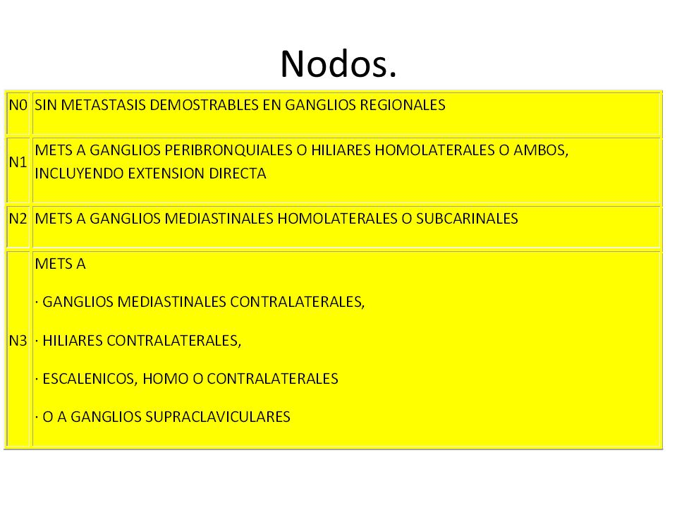 Nodos.