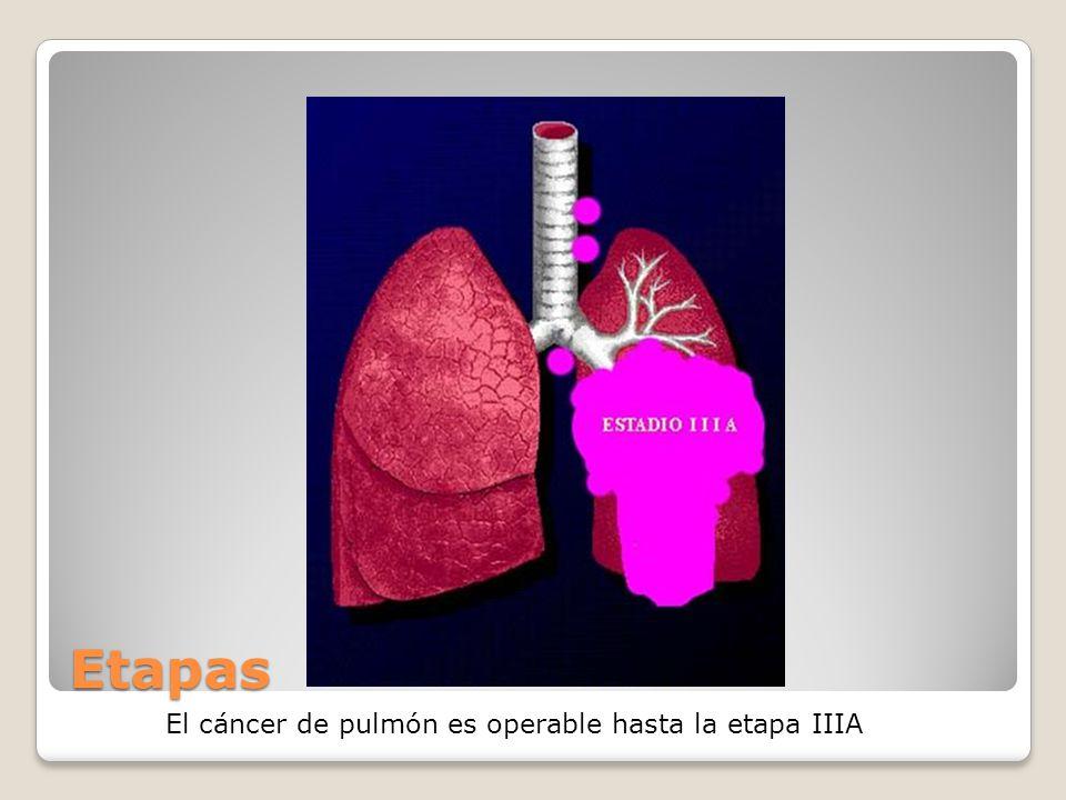 Etapas El cáncer de pulmón es operable hasta la etapa IIIA