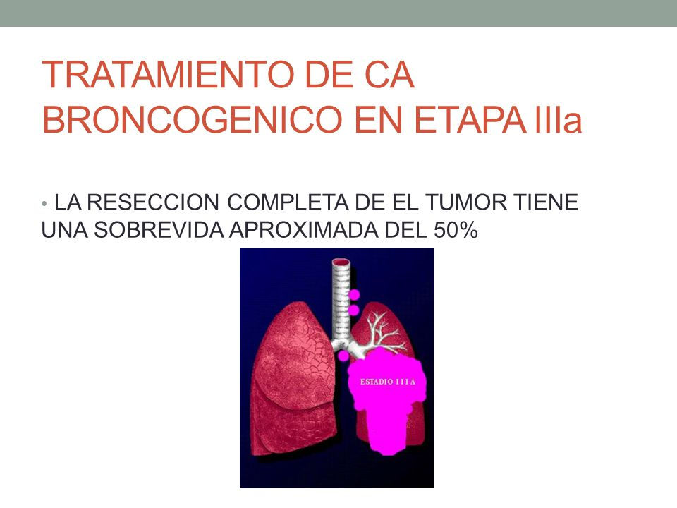 TRATAMIENTO DE CA BRONCOGENICO EN ETAPA IIIa
