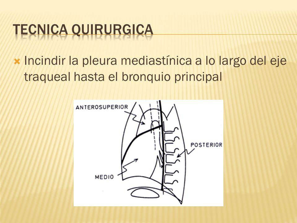 Tecnica quirurgica Incindir la pleura mediastínica a lo largo del eje traqueal hasta el bronquio principal.