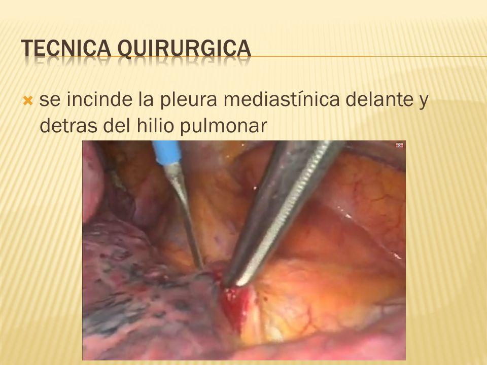 Tecnica quirurgica se incinde la pleura mediastínica delante y detras del hilio pulmonar