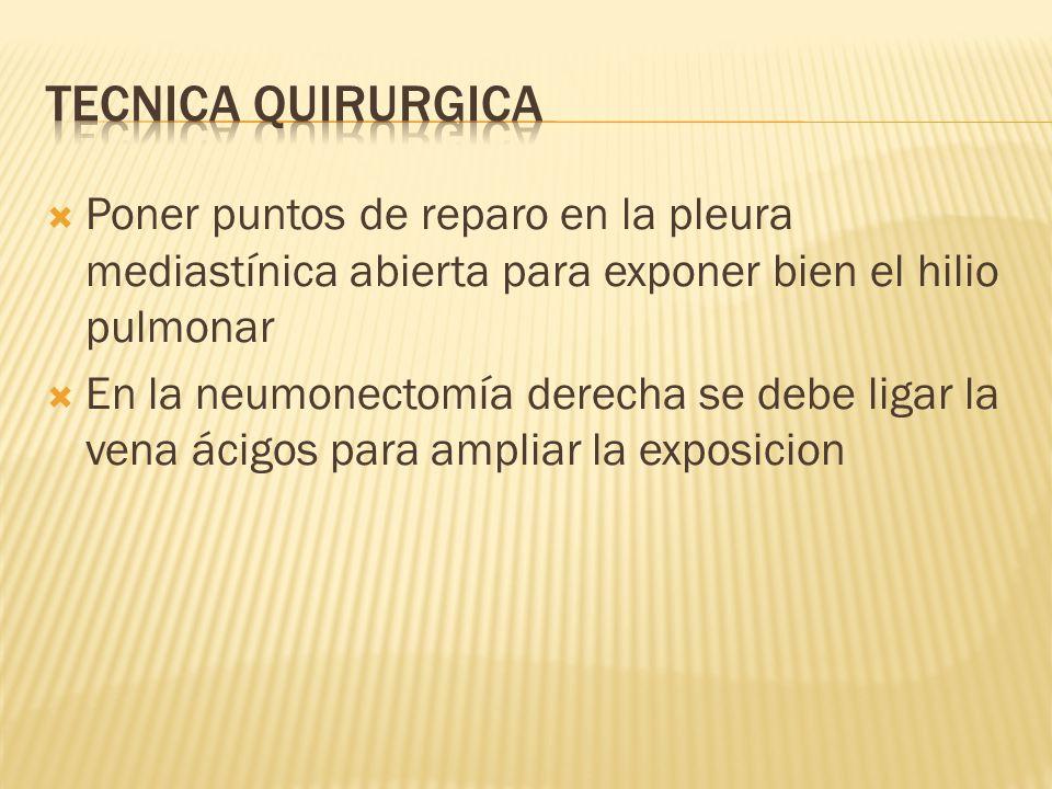 Tecnica quirurgica Poner puntos de reparo en la pleura mediastínica abierta para exponer bien el hilio pulmonar.