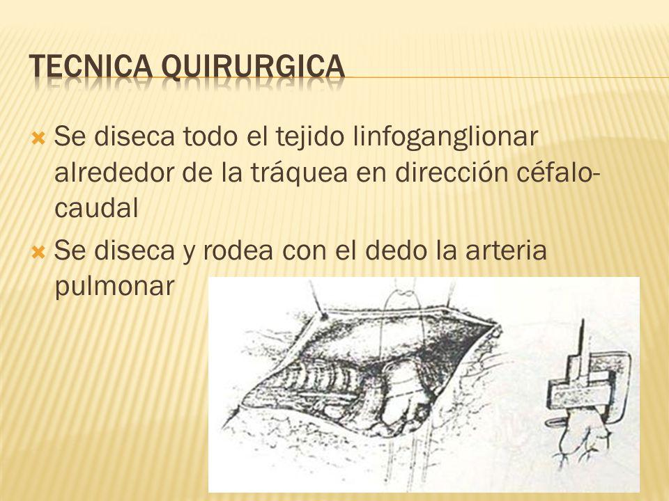 Tecnica quirurgica Se diseca todo el tejido linfoganglionar alrededor de la tráquea en dirección céfalo-caudal.