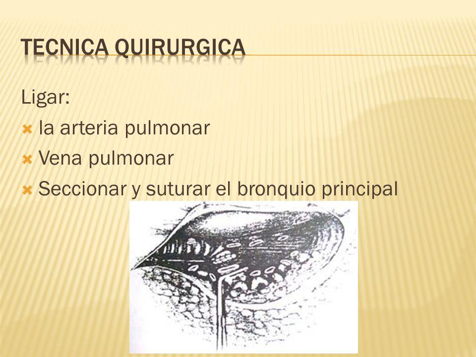Tecnica quirurgica Ligar: la arteria pulmonar Vena pulmonar