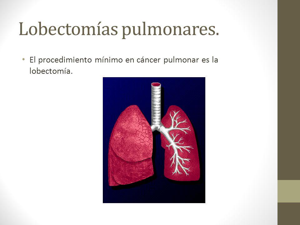 Lobectomías pulmonares.