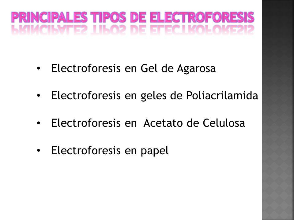 Principales tipos de electroforesis