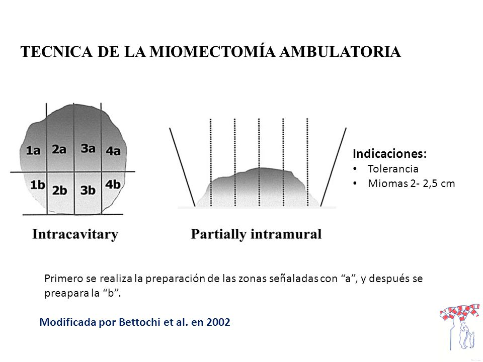 TECNICA DE LA MIOMECTOMÍA AMBULATORIA