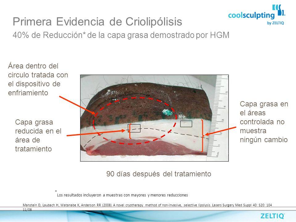 Primera Evidencia de Criolipólisis