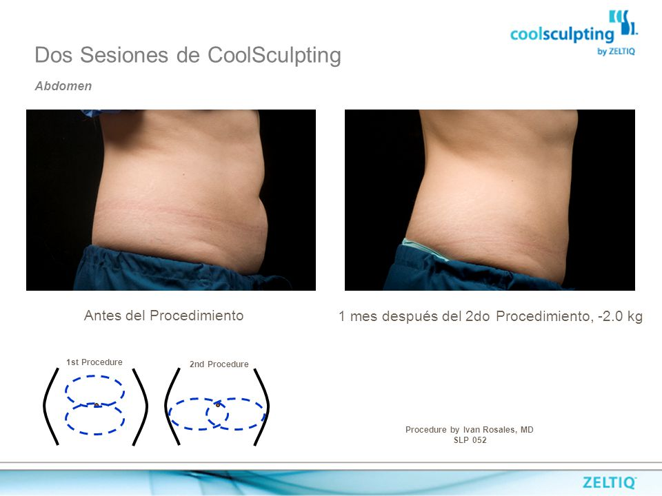 Procedure by Ivan Rosales, MD