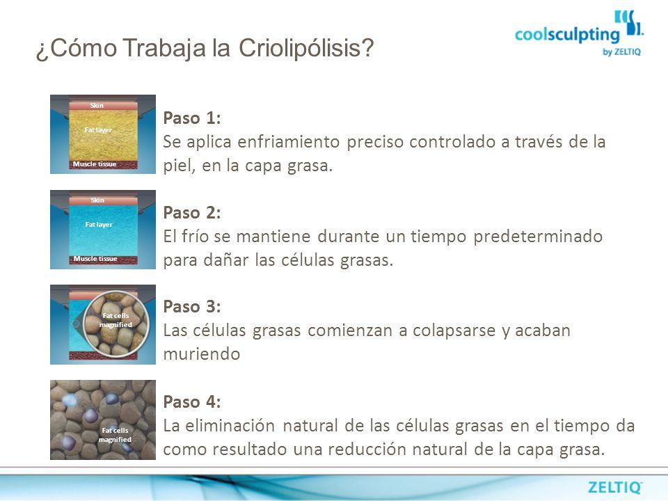 ¿Cómo Trabaja la Criolipólisis