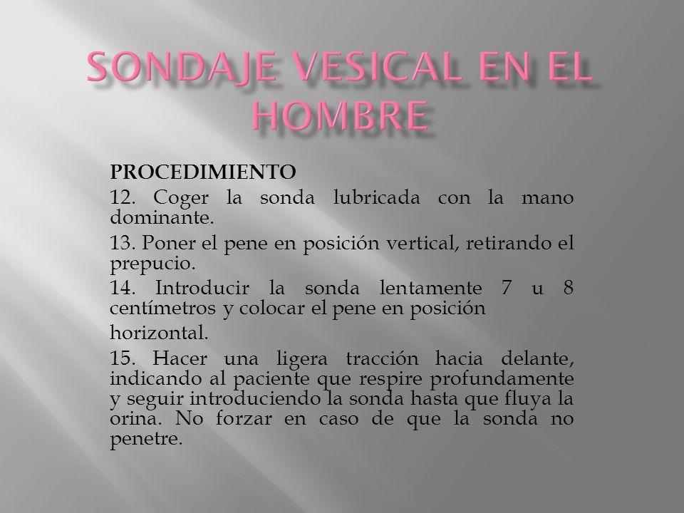 SONDAJE VESICAL EN EL HOMBRE